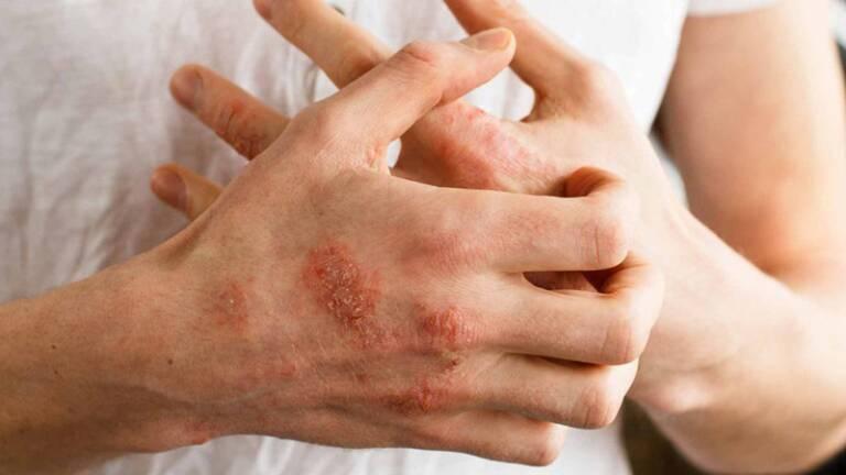 Dấu hiệu của bệnh tổ đỉa